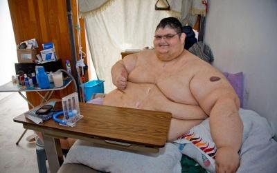Товстун-рекордсмен за три роки схуд на 330 кілограмів