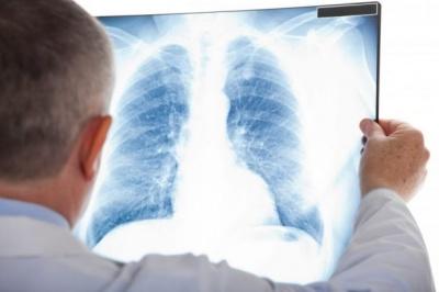 Де на Буковині найчастіше помирають від туберкульозу: сумна статистика