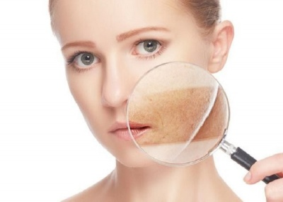 Відбілювальний крем для шкіри прикув жінку до лікарняного ліжка