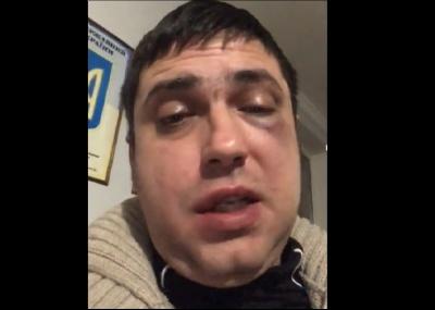 """Побиття біля """"Золотого фазана"""": у поліції Буковини відкрили кримінальне провадження"""