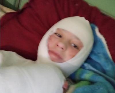 Школярці з Чернівців, яку підпалив батько, зробили першу операцію з пересадки шкіри