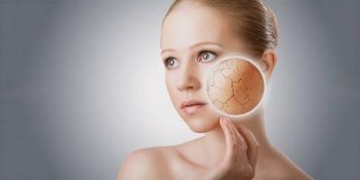 Сухість шкіри: коли це проявляється найбільше