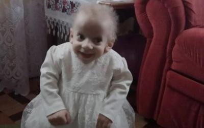 8-річна дівчинка померла від старості у Луцьку