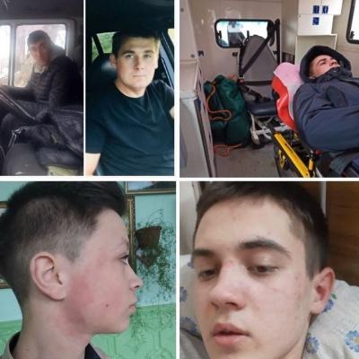 На Буковині двоє чоловіків побили школяра: з'явились деталі інциденту