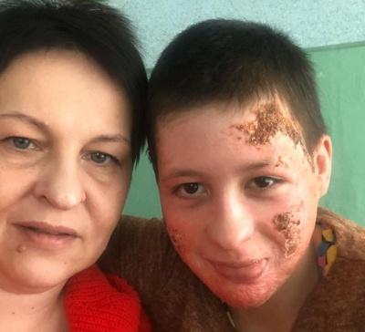 Дівчинка, яку в Чернівцях батько облив бензином і підпалив, йде на поправку