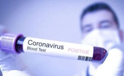 МОЗ: В Україні кількість хворих на COVID-19 сягнула 41