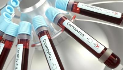 МОЗ: В Україні зафіксовано вже 97 випадків коронавірусу