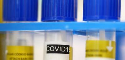 У МОЗ пояснили, що робити, якщо вам відмовили у тестуванні на COVID-19