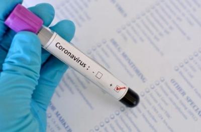В Україні вже 32 людей померли від коронавірусу