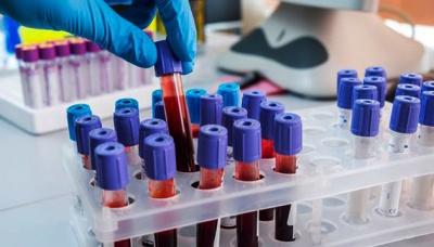 Глава Миколаївської СБУ заявив, що всі тести на коронавірус в області треба повторити