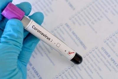 Коронавірус на Буковині: у Хотинському районі вже 69 випадків хвороби