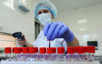 У Чернівцях лабораторний центр посилив свою потужність: тепер тестів на COVID-19 обробляють удвічі більше