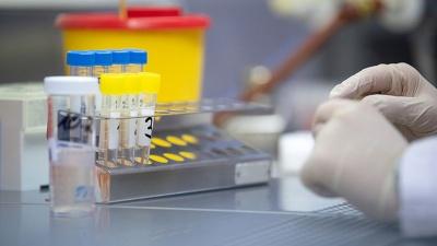 На Буковині за добу майже 40 осіб одужали від коронавірусу
