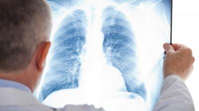 Лікарка з Чернівців пояснила, чим відрізняється пневмонія при COVID-19 і звичайне запалення легень