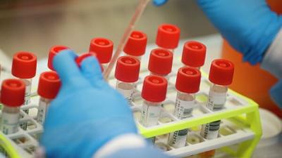 На Буковині вже більше 3000 випадків коронавірусу: хвороба не стихає