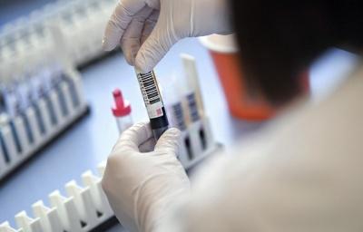 Коронавірус не зникає: на Буковині знову фіксують значну кількість інфікувань