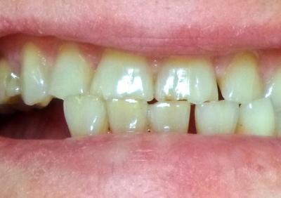 Анекдот дня: про зуби