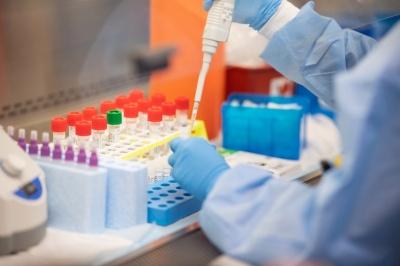 На Буковині виявили 38 нових хворих коронавірусом