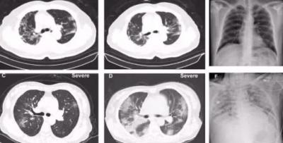 КТ легенів – ефективний спосіб виявлення ускладнень при коронавірусі*