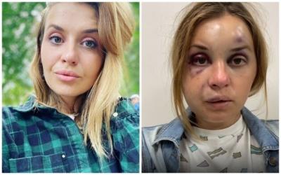 Прокинулася від ударів: в поїзді жорстоко побили і намагалися згвалтувати молоду матір