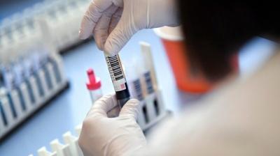 На Буковині дедалі більше хворих COVID-19: за добу - майже 100 нових випадків