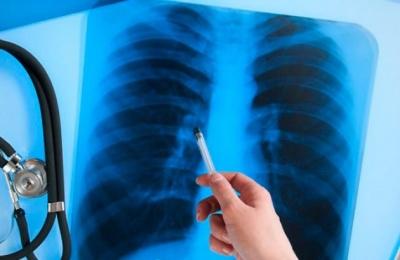 Вчені відкрили механізм самознищення туберкульозу