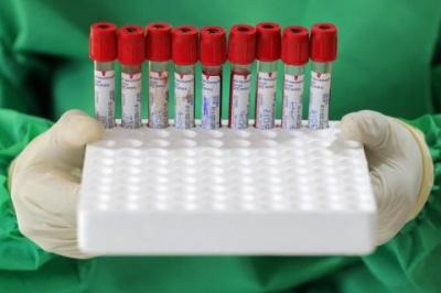 """Нова фаза пандемії COVID-19 у США. Інфекція стала """"надзвичайно поширеною"""""""