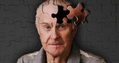 Вчені придумали спосіб уповільнити старіння мозку