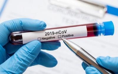 В Україні зменшилась смертність від коронавірусу
