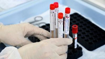COVID-19 в Україні. Зафіксували новий рекорд захворюваності за добу
