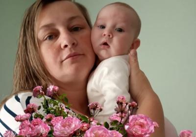Померла молода жінка з Буковини, в якої легені були уражені на 90%
