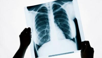 Чому для діагностики коронавірусу краще робити рентген легень: лікар-інфекціоніст пояснив деталі