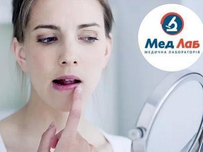 Лабораторія «МедЛаб» проводить аналізи на виявлення герпевірусних інфекцій*