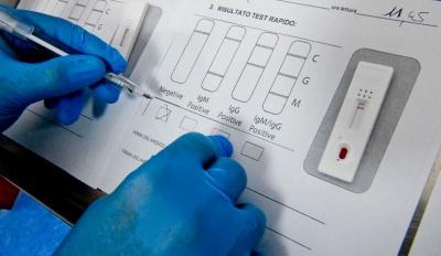 Тести на коронавірус робитимуть за 15 хвилин: кому необхідне обстеження