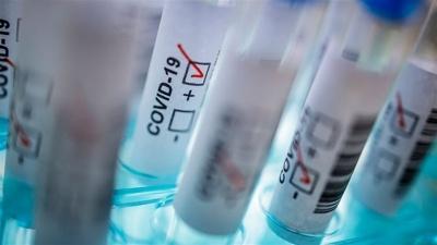 На Буковині через коронавірус 66 пацієнтів - у реанімаціях
