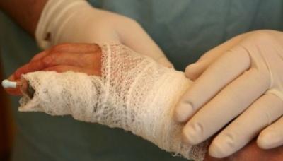 Гасили пожежу самотужки: на Буковині пенсіонерка отримала численні опіки
