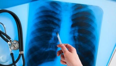На Буковині суттєво поменшало випадків туберкульозу: що відомо