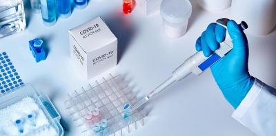 У Чернівцях медики дослідили рекордну кількість ПЛР-тестів від початку пандемії