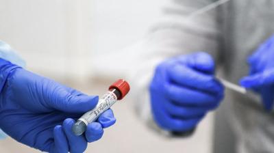У міськраді повідомили, що ситуація з коронавірусом у Чернівцях покращується
