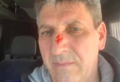 Екс-директору аеропорту «Чернівці» зламали ніс – він звинуватив охоронців «Тигра»