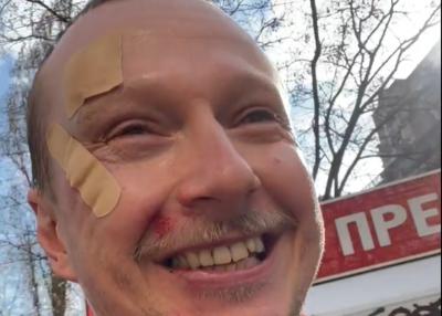 У центрі Києва побили відомого телеведучого Майкла Щура – відео