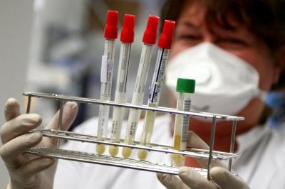 Коронавірус в Україні: на Буковині знову один із найнижчих показників