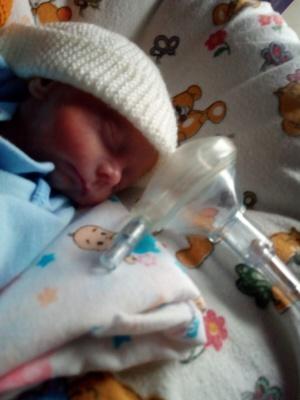 У Чернівцях лікарі виходили дитину, яка народилася зростом 27 см